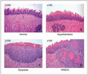 Histopathology Of 4