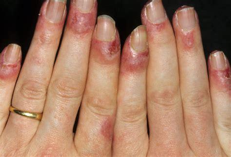lupus  pictures rashes  rashes happen