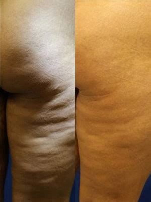 How to Smooth Cellulite...With Better Lighting | Allure