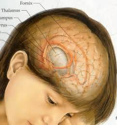 Brain Cancer Treatment Centers Abroad Brain Tumor