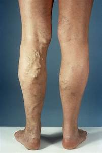 Varicose Veins - Heart and Blood Vessel Disorders - Merck ...