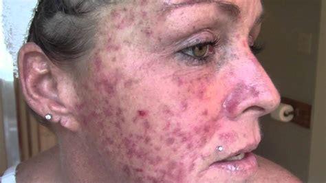 skin cancer  vlogjournal treatment  efudex vid