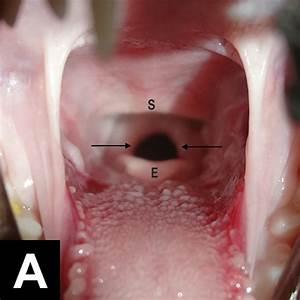 Endotracheal Intubation  Preparation Can Be Lifesaving