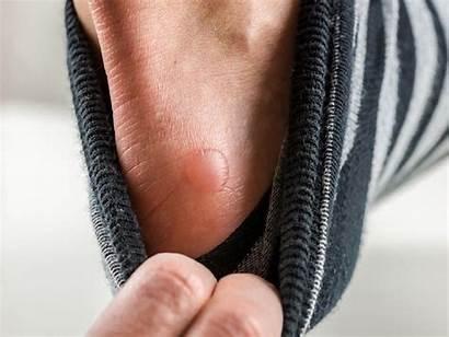 Covid Symptoms Sores Foot Coronavirus