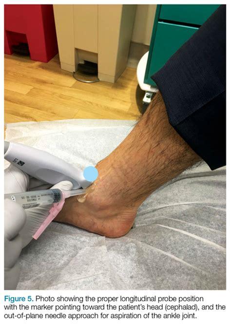 Emergency Ultrasound: Ultrasound-Guided Arthrocentesis of ...
