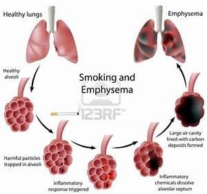 Emphysema  Copd   Causes  Symptoms  Treatment Emphysema