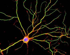 Brain Is 10 Times More Active Than Previously Measured
