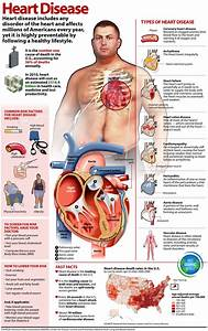 Coronary Heart Disease Symptoms submited images