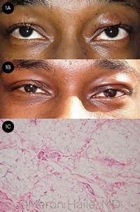 Blepharochalasis Syndrome