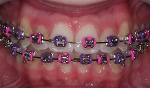 Pink - Purple | Braces Colors | Pinterest | Braces, Pink ...