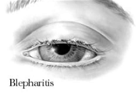 Blepharitis oorzaak