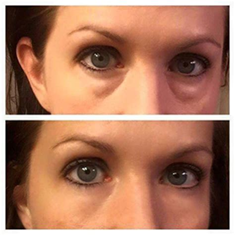 Instantly Ageless | Anti Wrinkle Cream