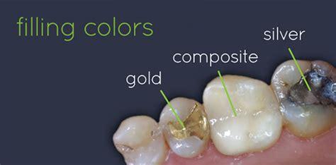 dental fillings emerald dental surgery nairobi
