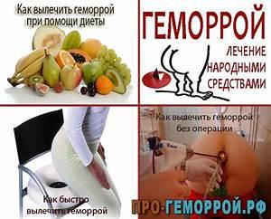 Геморрой после родов лечение симптомы
