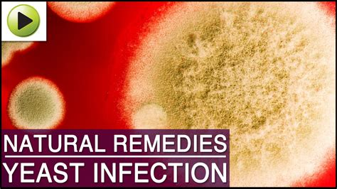 How To Cure Itch From Yeast Infection Best Yeast