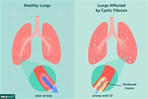 Cystic Fibrosis  Cf   Overview And More