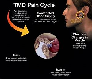 Read About  U202a  U200etmj U202c Symptoms And Treatments   U202a  U200etmd