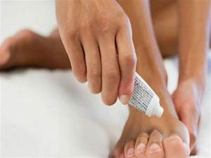 Избавляемся от грибка ногтей в домашних условиях