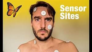 New Libre Sensor Sites  Alternative Sites From Diabetics