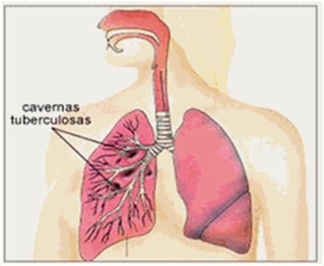 enfermedades profesionales respiratorias  de la piel