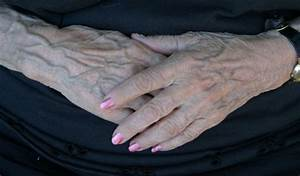 Bulging Hand Veins  Causes And Treatments