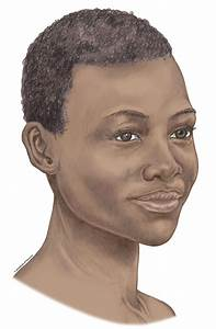 Chapter 5  Head  Neck And Face