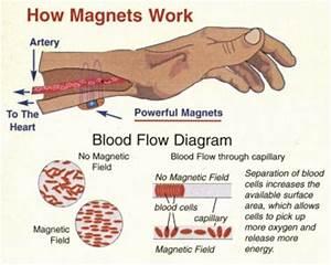 do magnetic bracelets work for arthritis