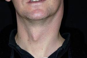 Swollen Lymph Nodes In Tonsillitis Photograph By Dr P