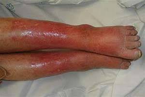 Cellulitis — Medlibes: Online Medical Library