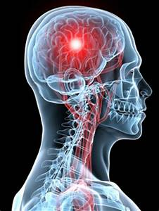 Applying pressure to the arms and legs shown to improve brain blood flow regulation Th?id=OIP