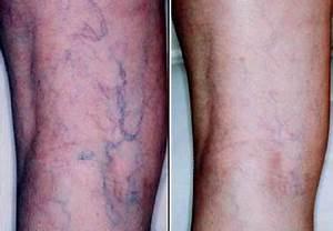 Spider Vein Treatment Boston - Remove Red Spots - Dr ...