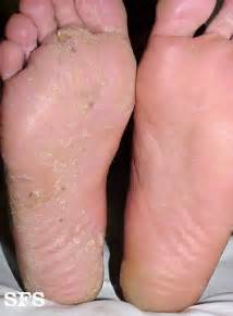 athlete s foot which is also known as tinea pedi or ringworm of the ...  Tinea Infections Athlete's Foot