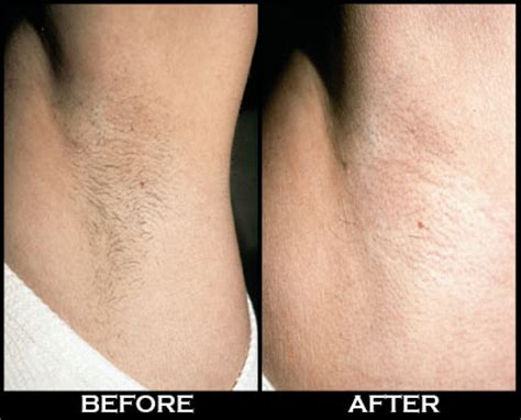 laser hair removal   laseraway