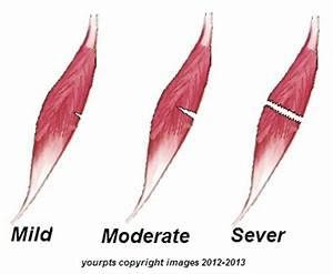 Боль сустав плеча лечение