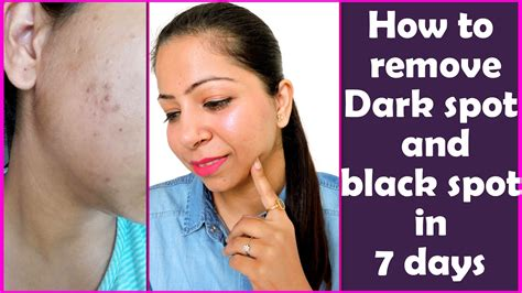 How To Remove Dark Spots & Black Spots On Face At Home In