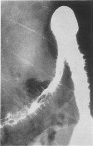 Barium Enema Showing Crohn U0026 39 S Disease Of The Large