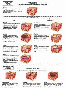 Additional Medical Terms - Integumentary System