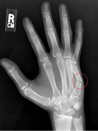 Fracture Metacarpal Treatment Hand Options Boxer Quiz