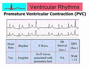 Ventricular Arrhythmias Related Keywords & Suggestions ...