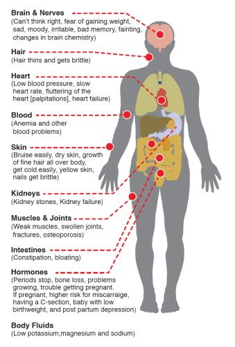 physical effects  anorexia seed eating disorder