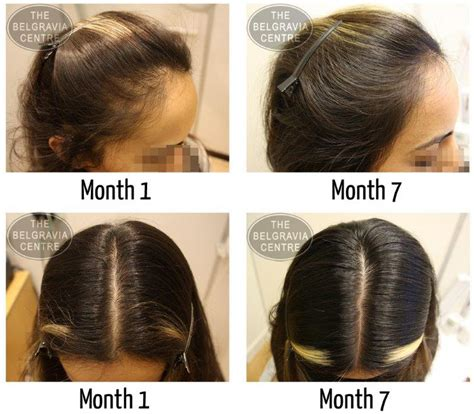 spironolactone hair loss before and women s hair loss treatment success stories
