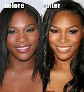 wedding invitations kerry serena williams plastic surgery before after pictures 2013