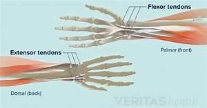 Wrist Tendonitis  An Overview