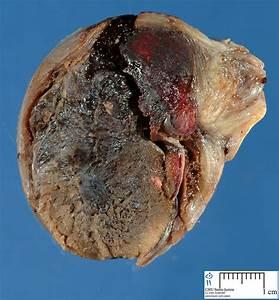 Hemorrhagic Necrosis - Humpath Com