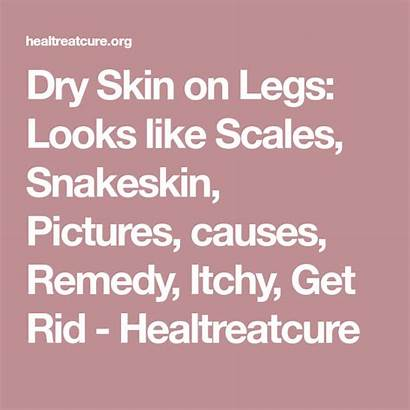 Skin Dry Legs Scales Looks Itchy Causes