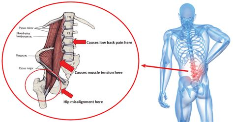 Bursae of the lower limb: 10 Exercises for Back and Hip Pain You Should Be Doing NOW ...