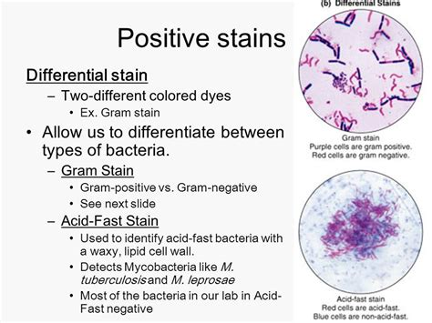 gram positive is what color what color is gram negative lab practical 1 microbiology