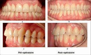 A To D This Patient U0026 39 S Class Ii Division 2 Malocclusion Was