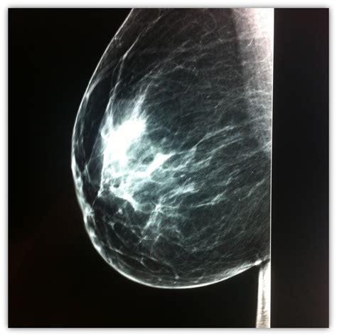 learned    mammogram beth woolsey