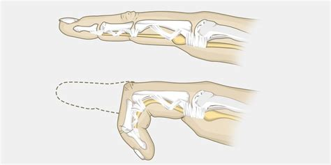 trigger finger the complete injury guide vive health
